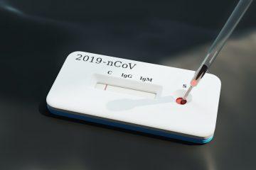 Corona virus sars cov 2 test