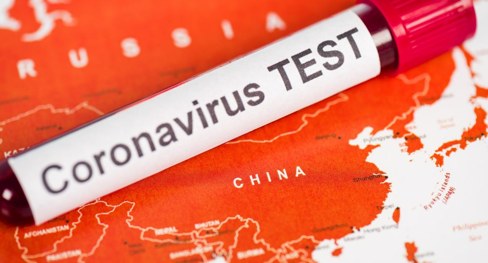 close up of sample with coronavirus test lettering on map